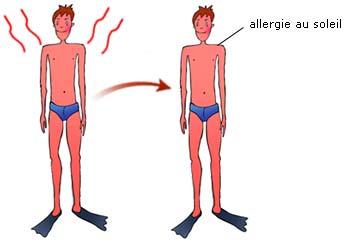 Allergie au soleil brulure - Comment transformer coup de soleil en bronzage ...
