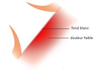 brulûre deuxieme degré