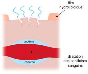 dilatation des capillaires sanguins