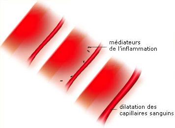dilatation capillaires