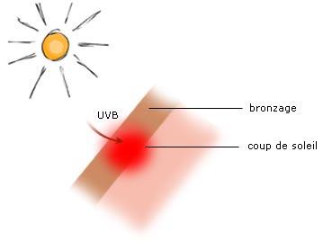 Causes br lure - Transformer un coup de soleil en bronzage ...