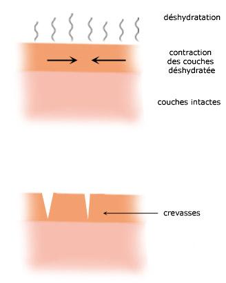 La déshydratation provoque un tiraillement des couches superficielles de la peau, puis l'apparition de crevasses.