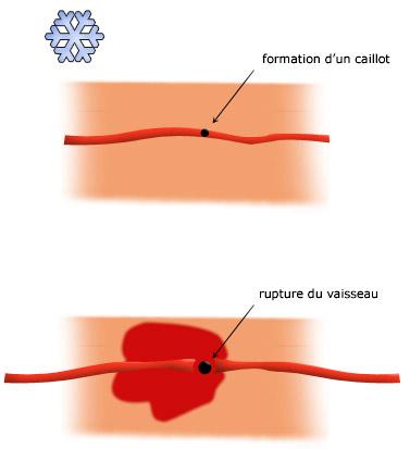 Brûlure - La rougeur provient de la rupture de très fins vaisseaux sanguins superficiels.