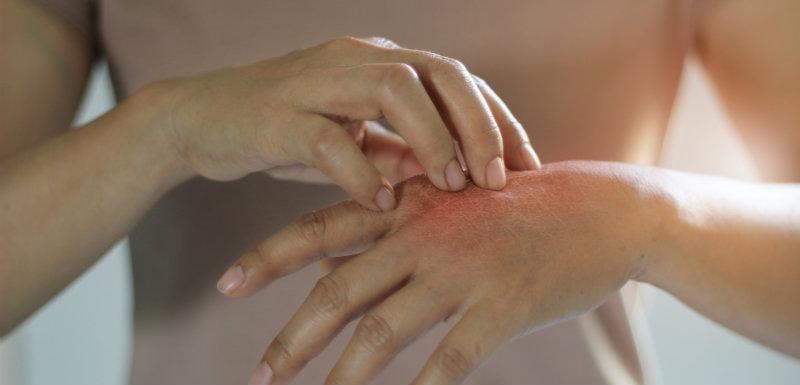personne se grattant la main à cause de brûlures dû au syndrome de Lyell