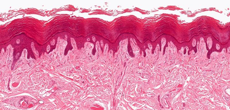 Des cellules cutanées capables de régénérer la peau